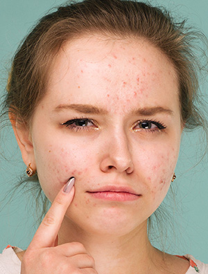 CBD for dry skin conditions